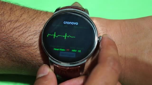 smartwatch ecg